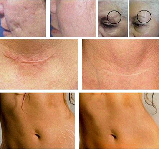 Согласно исследованиям, Серебряные мостики в 97% улучшают состояние рубцов и шрамов