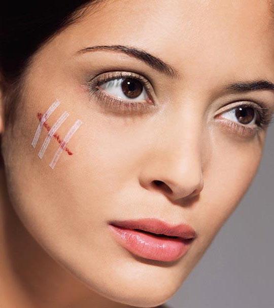 пластырь Серебряные мостики на свежем шраме на лице